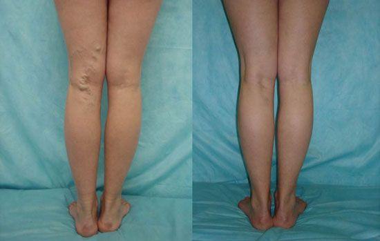 Результат лечения варикозного расширения